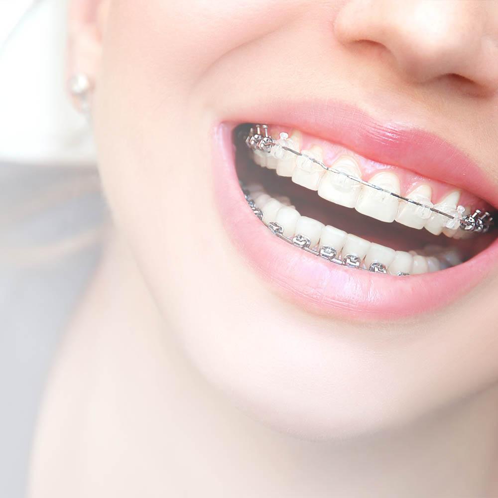 ortodoncija proteze beli
