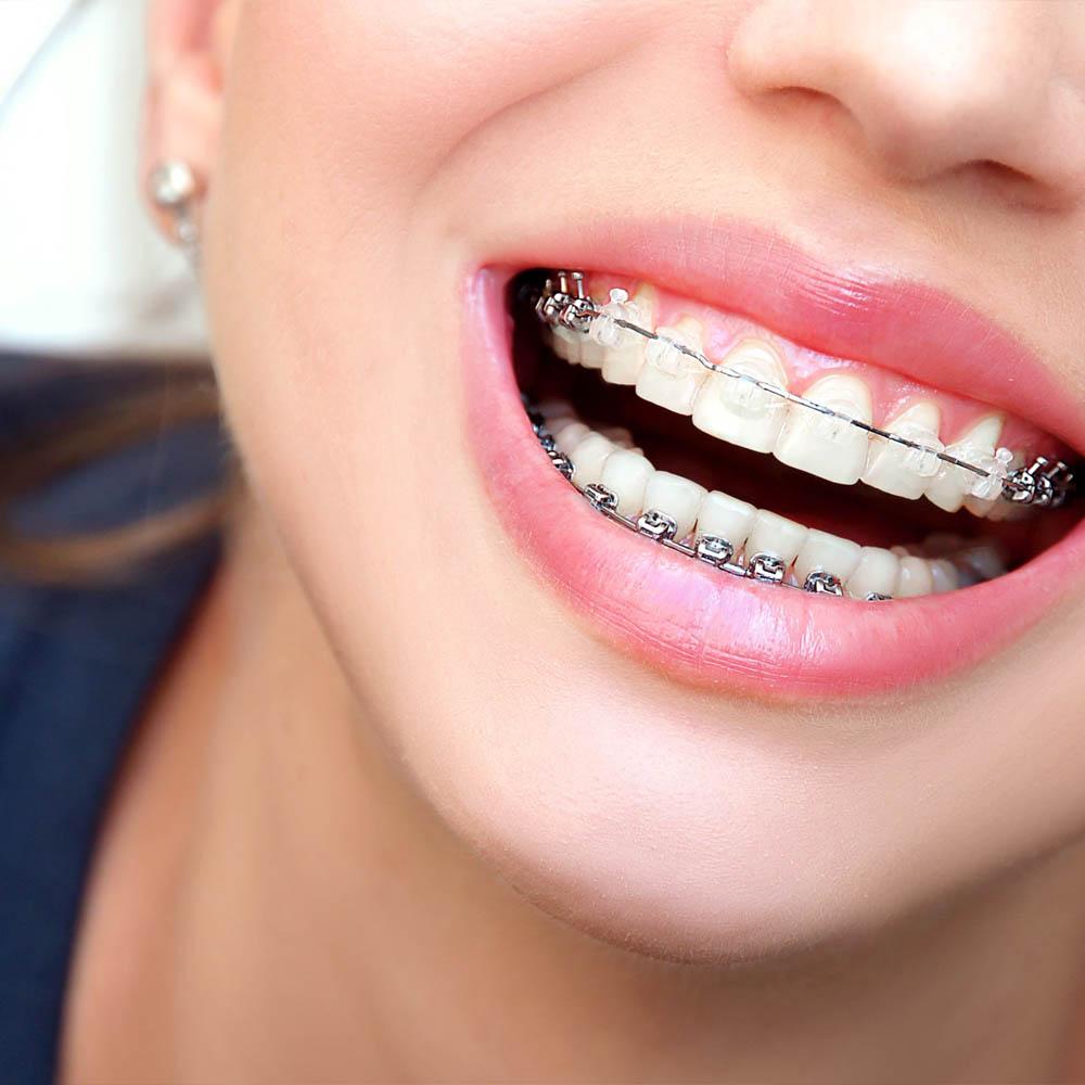 ortodoncija proteze